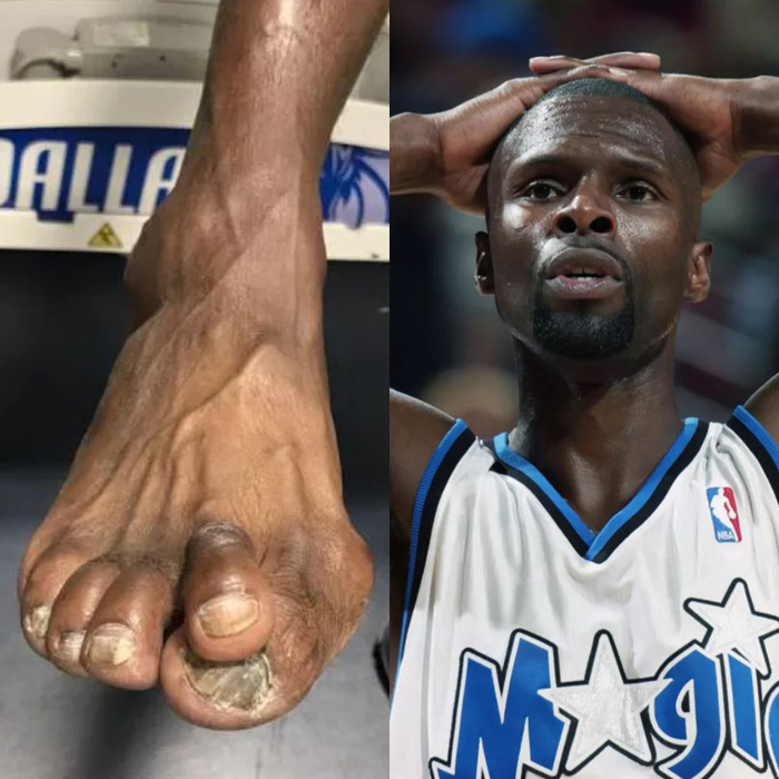 darrel armstrongs feet